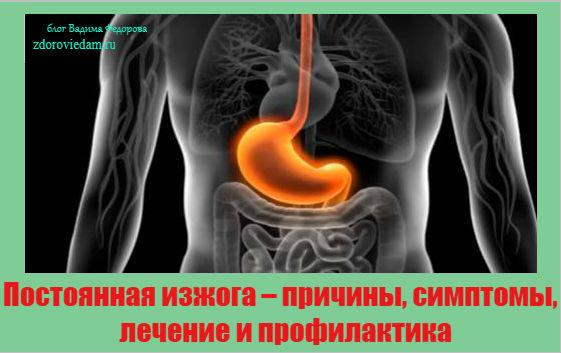 postoyannaya-izzhoga-prichiny-simptomy-lechenie-i-profilaktika