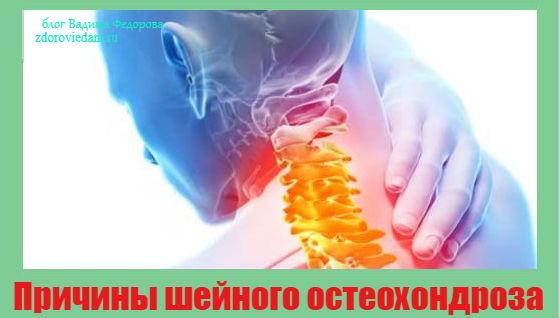 prichiny-shejnogo-osteohondroza