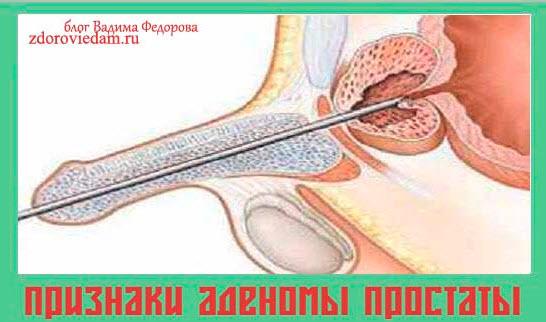 priznaki-adenomy-prostaty