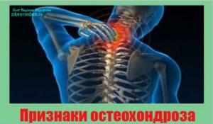 priznaki-osteohondroza