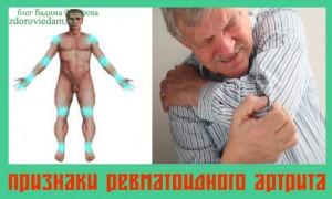 priznaki-revmatoidnogo-artrita