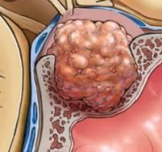 prolaktinoma-vneshni-vid-opuholi