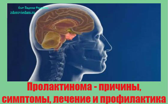 prolaktinoma