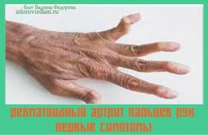 revmatoidnyj-artrit-paltsev-ruk-pervye-simptomy