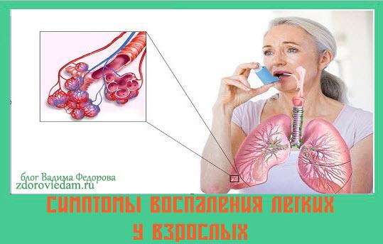 simptomy-vospaleniya-legkih-u-vzroslyh