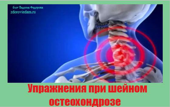 uprazhneniya-pri-shejnom-osteohondroze