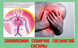 zabolevaniya-serdechno-sosudistoj-sistemy