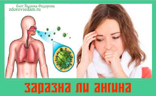 zarazna-li-angina