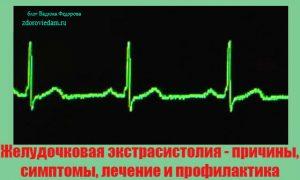 zheludochkovaya-ekstrasistoliya